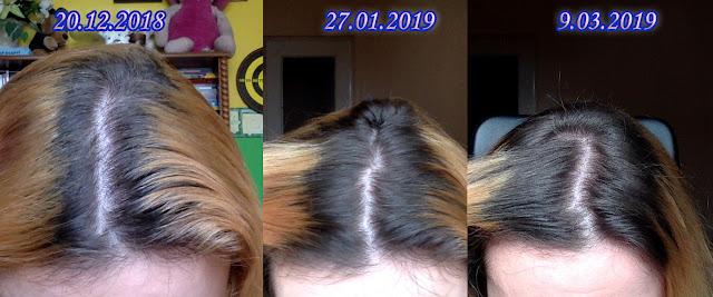Jak zapuszczam włosy zimą? Stare sposoby + Nowa wcierka z maści końskiej