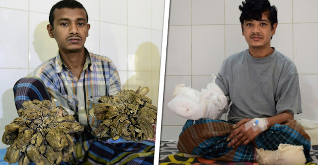Tree Man Of Bangladesh Cured Of Condition That Turned His Hands Into Branches