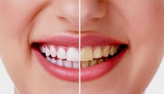 Penting!! 5 Cara Sehat Alami Memutihkan Gigi