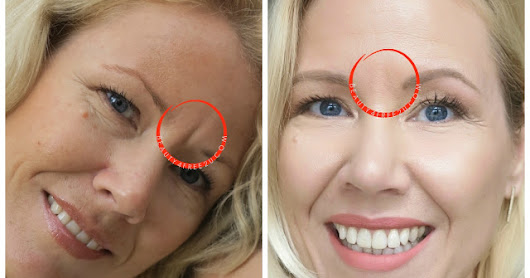 how to get rid of smile lines eyes