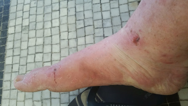 Karmas foot is cracked and blistered from hiking the Pacific Crest Trail.