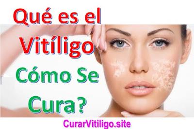 que-es-el-vitiligo-causas-sintomas-cura-natural-complicaciones-terapias-alternativas