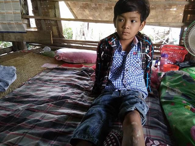 ခင္ႏွင္းေဝ (Myanmar Now) ● တိုက္ေလယာဥ္ F7 အစိတ္အပိုင္းထိမွန္ခဲ့သည့္ ကေလးငယ္ ဒဏ္ရာမသက္သာေသး