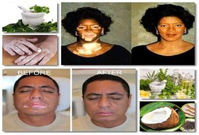 Vitiligo-Tratamiento-Casero-Natural-Remedios-Caseros-Tratar-hierbas