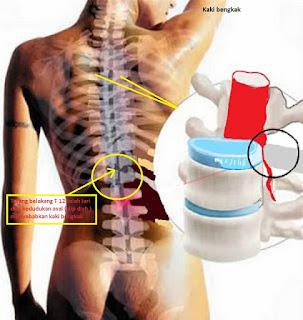Image result for tulang belakang manusia slip