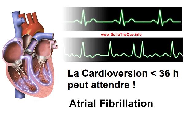 Dans la Fibrillation Atriale FA récente aux Urgences : La Cardioversion < 36 h peut attendre !
