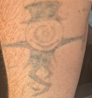 A photo of a fading tattoo over 18 months of tattoo removal