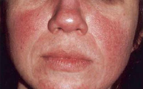 imagenes de rosacea en cara