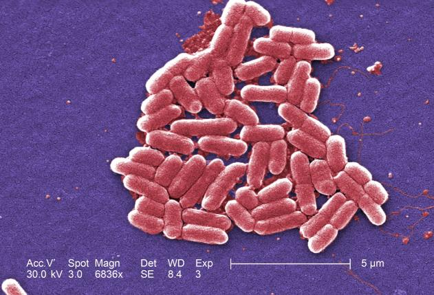 بكتريا مقاومة لجميع المضادات الحيوية
