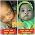 Eczema Baby Rawatan Marine Essence