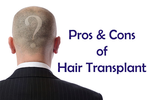 Read These Pros & Cons Before Getting A Hair Transplant