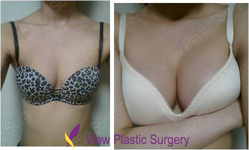 Uneven breasts after augmentation