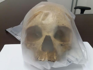 Faxineiro encontra crânio humano em lixo