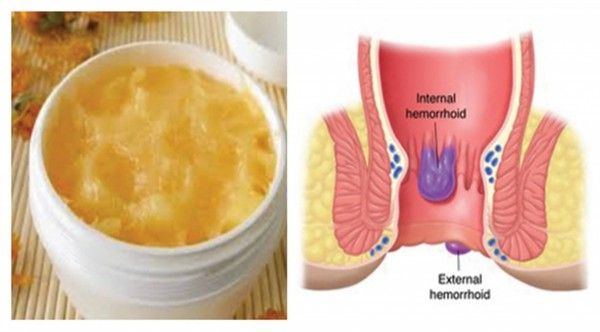 Prepare This Ointment For Hemorrhoids At Home And Get Rid Of Them Forever !