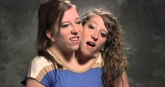 Abby ve Brittany Hensel Yapışık İkizler