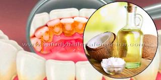 Expulsa las bacterias del mal aliento y elimina la placa con aceite de coco, un ingrediente que puede ayudar a eliminar la acumulación de sarro en los dientes y matar las bacterias dañinas.