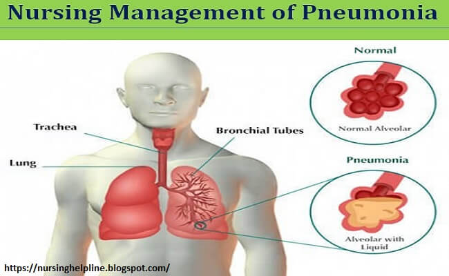 Nursing management of pneumonia disease