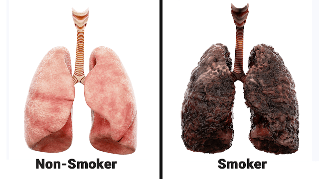 Nurse Explains What Smoking Does Every Day To Your Lungs