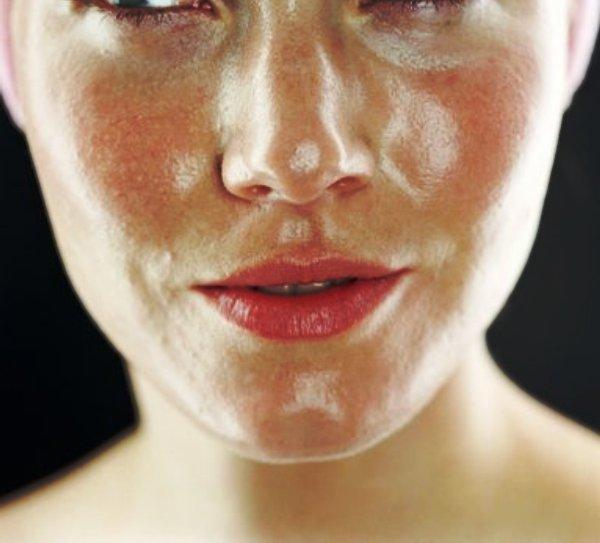 Obat Sabun Jerawat Untuk Kulit Muka Berminyak: Info Kecantikan : Masalah Kulit Wajah Berminyak