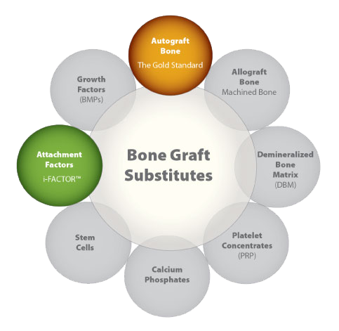 bone graft substitues dnb ms ortho