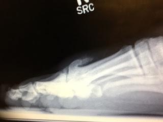 Image result for big toe bone spur