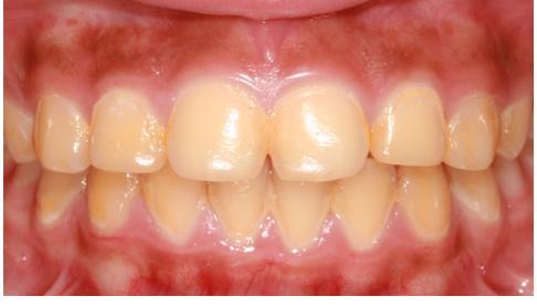 Mengapa Gigi Bisa Kuning Ini Penjelasannya Idnportal