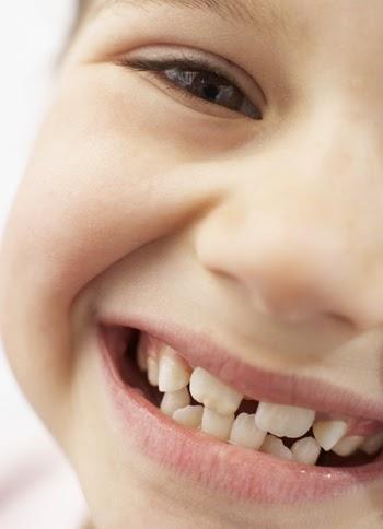 10 Cosas Sobre Los Dientes Chuecos La Mala Mordida Y La Ortodoncia