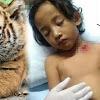 Ngeri, 5 Kasus Penyerangan Binatang Buas Terhadap Manusia Paling Mematikan Sepanjang 2017