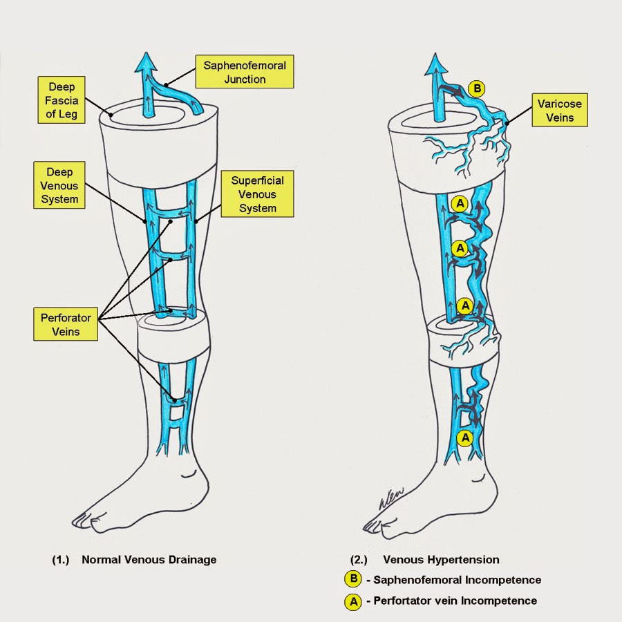 small resolution of many superficial veins exist but they all drain into the 2 largest superficial veins the greater saphenous vein gsv and the short saphenous vein ssv