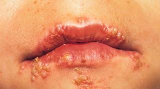 obat herpes labialis , obat tradisional herpes labialis , obat salep herpes labialis , obat alami herpes labialis , obat herpes simplex labialis , obat penyakit herpes labialis , obat herbal untuk herpes labialis , obat untuk herpes labialis , obat herpes simplex , obat herpes simplex virus