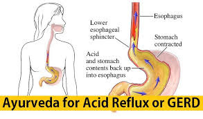 Treatment of Acid Reflux