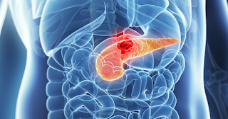 Know The Symptoms Of Pancreatic Cancer, The 'Silent' Disease That Destroys Life
