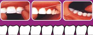 Membersihkan dengan floss atau benang gigi