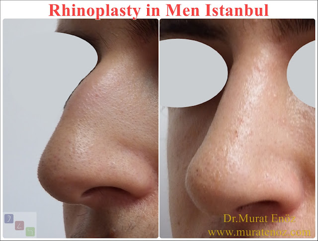 Nose Job Surgery for Men - Male Rhinoplasty - Men's Rhinoplasty - Nose Reshaping for Men - Mens Rhinoplasty - Nose Job Rhinoplasty for Men - Best Rhinoplasty For Men Istanbul - Nose Aesthetic for Men - Male Nose Operation - Male Rhinoplasty Surgery in Istanbul - Male Rhinoplasty Surgery in Turkey - Male Nose Aesthetic Surgery - Rhinoplasty In Mens