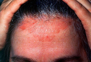 obat gatal kulit kepala berkerak dan mengelupas