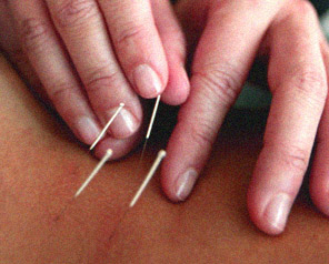High blood pressure can be treated using acupuncture.