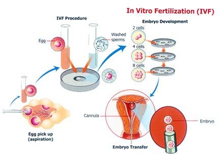 What is best option against vitro fertilization