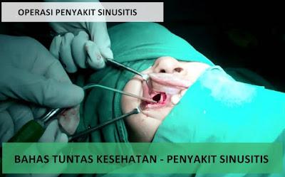 Obat Sinusitis Resep Dokter Yang Terbukti Ampuh