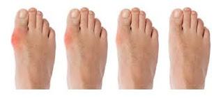 โรคเก๊าท์ที่ข้อนิ้วเท้า