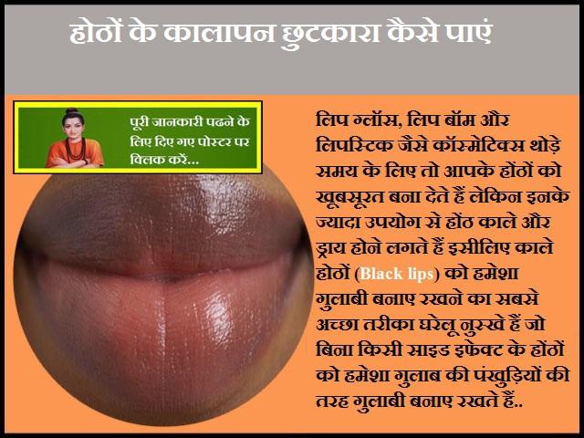 How to get rid of Lips Blackness-होठों के कालापन छुटकारा कैसे पाएं