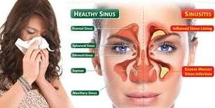 Pengobatan Penyakit Sinusitis Paling Mujarab