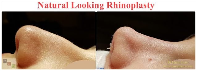 Natural Looking Rhinoplasty - Natural Nose Job - Natural Rhinoplasty - Female Nose Aesthetic Surgery - Nose Jobs For Women - Nose Reshaping for Women - Best Rhinoplasty For Women Istanbul - Female Rhinoplasty Istanbul - Nose Job Surgery for Women - Women's Rhinoplasty - Nose Aesthetic Surgery For Women - Female Rhinoplasty Surgery in Istanbul - Female Rhinoplasty Surgery in Turkey