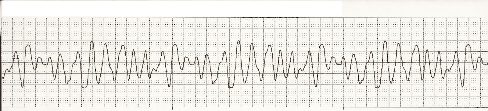 Float Nurse: EKG Rhythm Strip Quiz 80