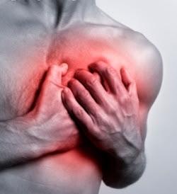 Obat Herbal Buat Jantung Koroner