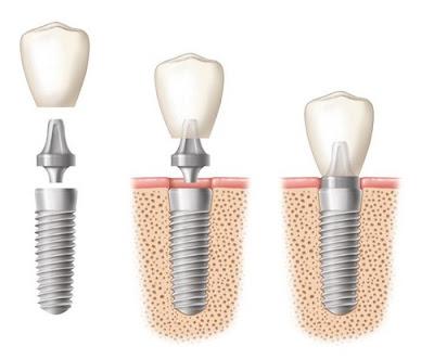 răng Implant là gì