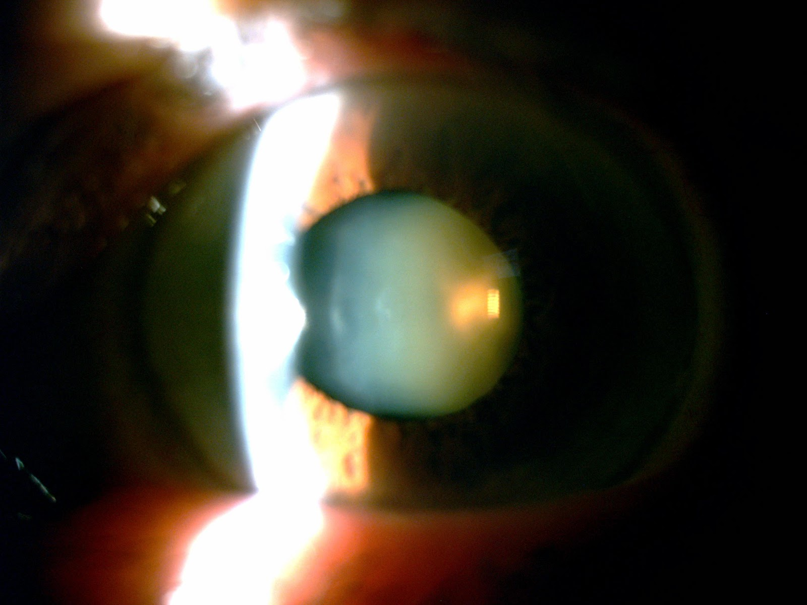 Vernon's Vision: Find The Cataract