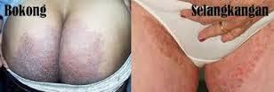 mengatasi jamur kulit sekitar selangkangan dan pantat