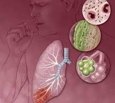 Obat ISPA Herbal