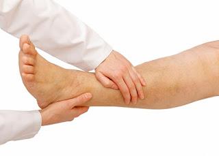 Deep vein thrombosis (DVT): understanding, symptom, Cause, diagnosis, Treatment and complication