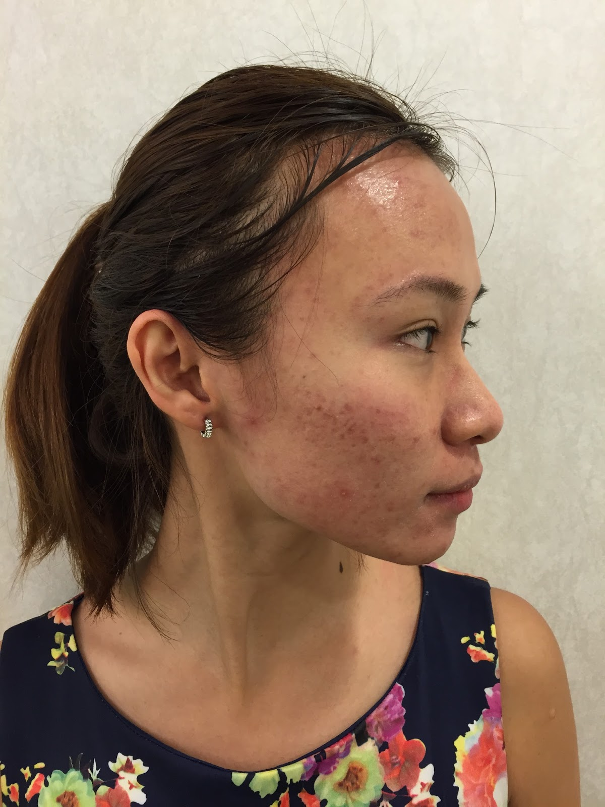 Dr Gerard Clifford Ee Adult Acne Permanent Cure